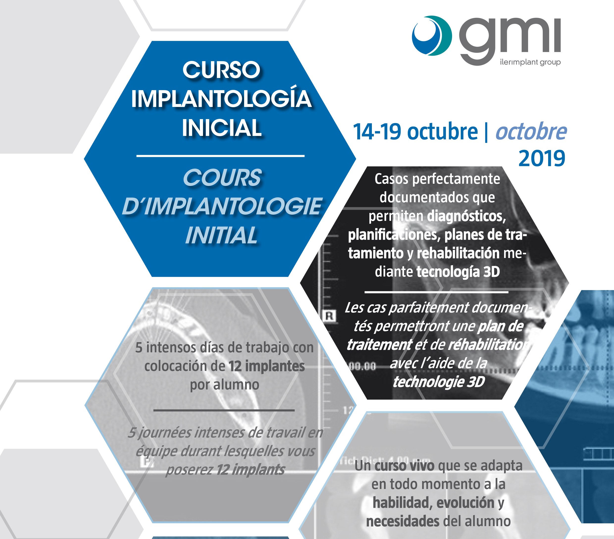 New implantology course in Málaga